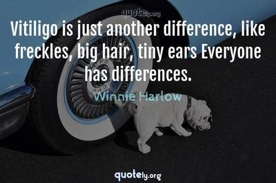 Photo Quote of Vitiligo is just another difference, like freckles, big hair, tiny ears Everyone has differences.