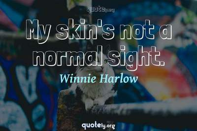 Photo Quote of My skin's not a normal sight.