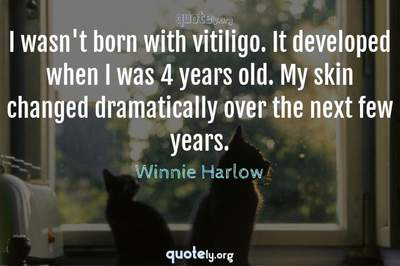Photo Quote of I wasn't born with vitiligo. It developed when I was 4 years old. My skin changed dramatically over the next few years.
